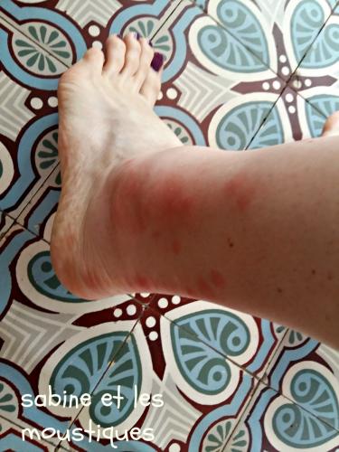 cheville-moustique.jpg